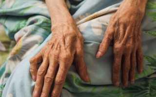 Лежачий больной после инсульта: признаки перед смертью, помощь